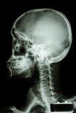 Череп и цервикальный позвоночник человека Стоковое Фото