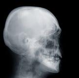 череп x луча стоковое изображение rf