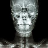 Череп нормального человека Стоковое Фото