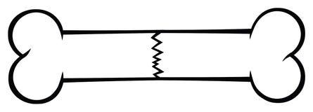 Черно-белая линия дизайн перелома кости чертежа мультфильма стоковое фото rf