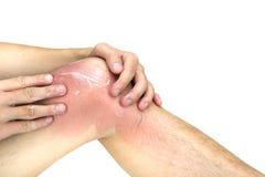 Человек прикладывает лосьон на sunburnt коже колена, на белой предпосылке Стоковые Фотографии RF
