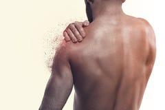Человек с болью в плече стоковая фотография rf