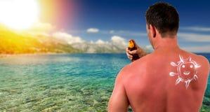 Человек с sunburned кожей Стоковая Фотография