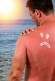 Человек с sunburned кожей Стоковые Фотографии RF