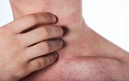 Человек царапая его шею с сыпью Стоковые Фото