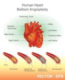 Человеческая ангиопластика воздушного шара сердца Стоковые Изображения RF