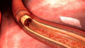 Человеческая артерия стоковые изображения rf