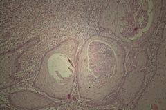 Человеческая кожа с карциномой squamous клетки Стоковые Фото