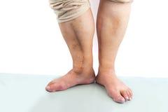 Человеческая нога с послеоперационным шрамом сердечной хирургии Стоковые Фотографии RF