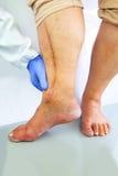 Человеческая нога с послеоперационным шрамом сердечной хирургии Стоковое Фото