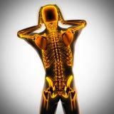 Человеческая развертка рентгенографирования с накаляя косточками Стоковая Фотография RF