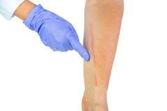 Человеческая рука с послеоперационным шрамом сердечной хирургии Стоковые Фото
