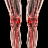 Человеческие соединения ноги с мышцами Стоковые Изображения RF