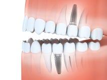 Человеческие челюсть и зубные имплантаты Стоковые Изображения