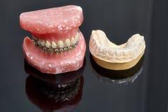 Человеческие челюсть или зубы моделируют с расчалками связанными проволокой металлом зубоврачебными Стоковые Фотографии RF