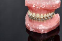 Человеческие челюсть или зубы моделируют с расчалками связанными проволокой металлом зубоврачебными Стоковое Изображение RF