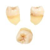 Человеческий зуб Стоковые Изображения