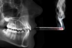 Человеческий курить рентгенографирования Стоковые Фото