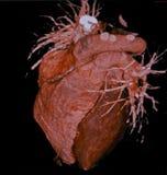 Человеческое сердце, компьютерная томография, CT, радиология стоковое изображение rf