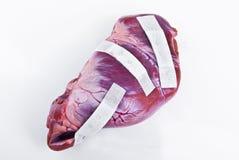 Человеческое сердце после концепции хирургии Стоковые Фото