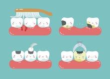 Чистящ щеткой сделайте болезненные камедь и зубы, разваленные зубы, заполняя зуб зубоврачебного комплекта Стоковое фото RF