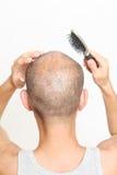 Чистя щеткой тонкие волосы стоковые фото