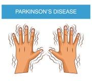 Шарж заболеванием Parkinsons иллюстрация вектора