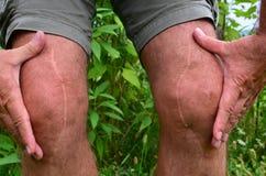 шрамы Стоковые Фотографии RF