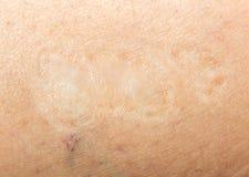 Шрам на человеческой коже Стоковое Изображение RF