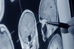 экзамен медицинский стоковое изображение rf