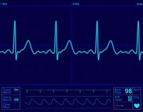 экран монитора сердца Стоковое фото RF