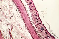 Эластичная хрящевина человеческого наружного уха стоковое фото