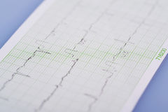 Электрокардиограмма стоковое изображение