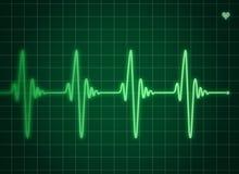 электрокардиограмма Стоковые Фото