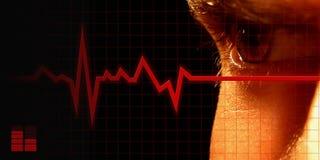 электрокардиограмма Стоковое Фото