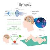 эпилепсия иллюстрация вектора