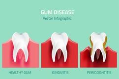 Этапы заболеванием камеди Зубы infographic Стоковые Изображения RF