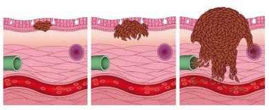 Этапы рака иллюстрация штока