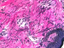 Эластические волокна кожи стоковое изображение rf