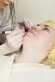 Электрическая внимательность кожи Стоковые Фотографии RF