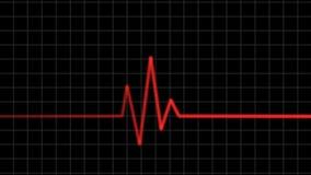 электрокардиограмма Волны биения сердца бесплатная иллюстрация