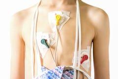 Электрокардиограмма или контроль сердца используя Holter для молодого пациента Стоковая Фотография