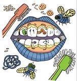 Юмор гигиены вектора зубоврачебный с ртом показывая грязные зубы с червями и металлической пластинкой и овощами иллюстрация штока