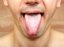 Язык инфекции стоковое фото rf