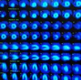 Ядерные миокардиальные нагрузочные испытания перфузии Стоковое фото RF