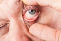 一个人加宽他的眼睛 免版税图库摄影