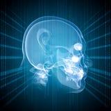 一个人的头的X-射线图象 免版税库存图片
