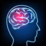 一个人头的剪影 偏头痛疾病 脑子紧张的syst 免版税图库摄影