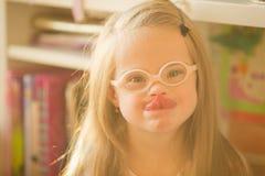 一个女孩的画象有唐氏综合症的 库存照片