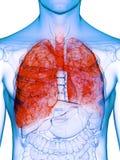 一个害病的肺 库存例证
